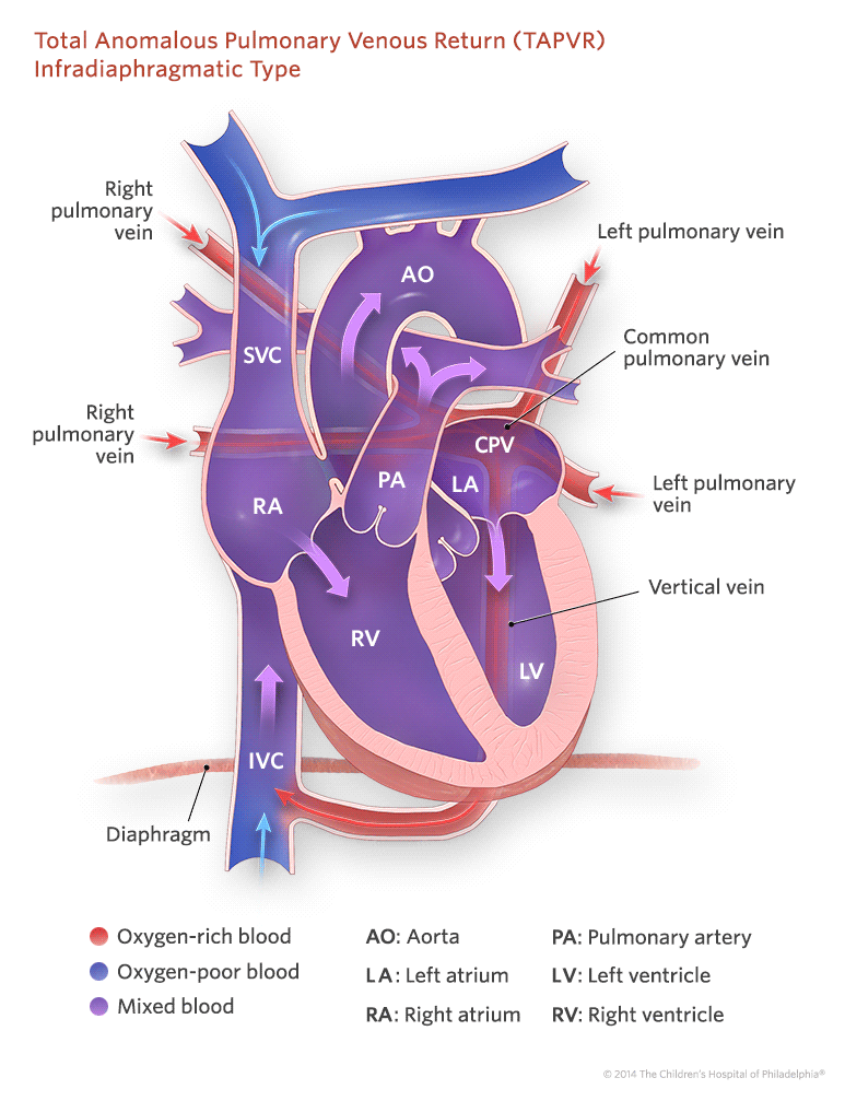 total-anomalous-pulmonary-venous-return-infradiaphragmatic-type-illustration-773px.png