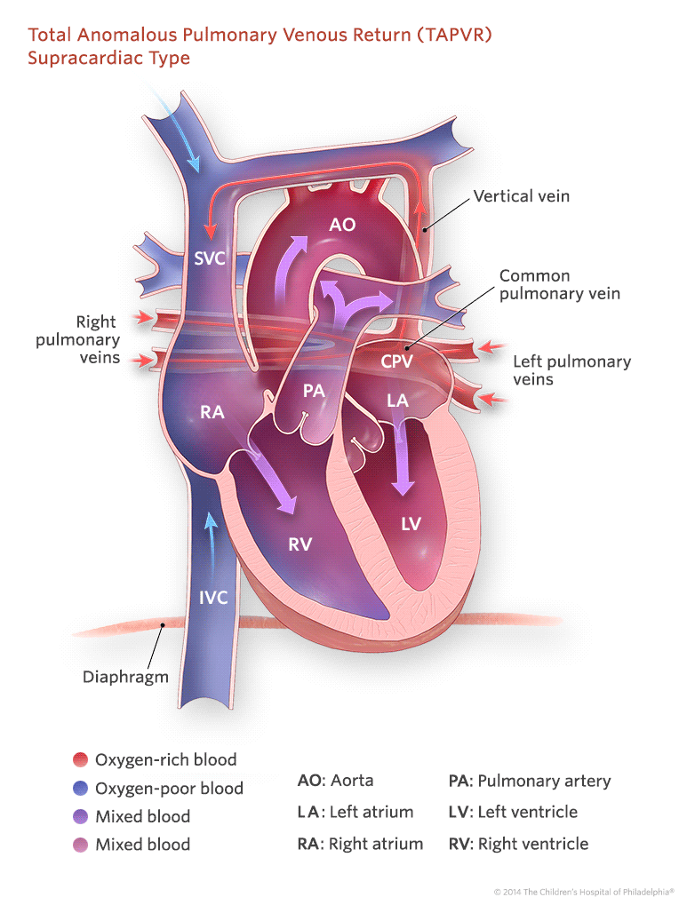 total-anomalous-pulmonary-venous-return-supracardiac-type-illustration-773px.png
