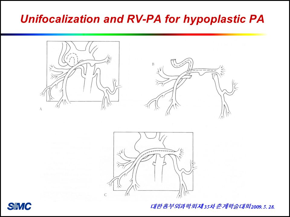 Unifocalization+and+RV-PA+for+hypoplastic+PA.jpg