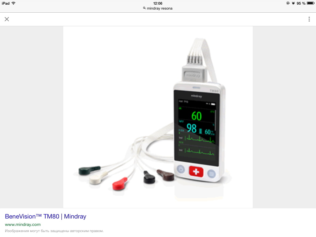 BENEVISION TM80 MINDRAY.jpg